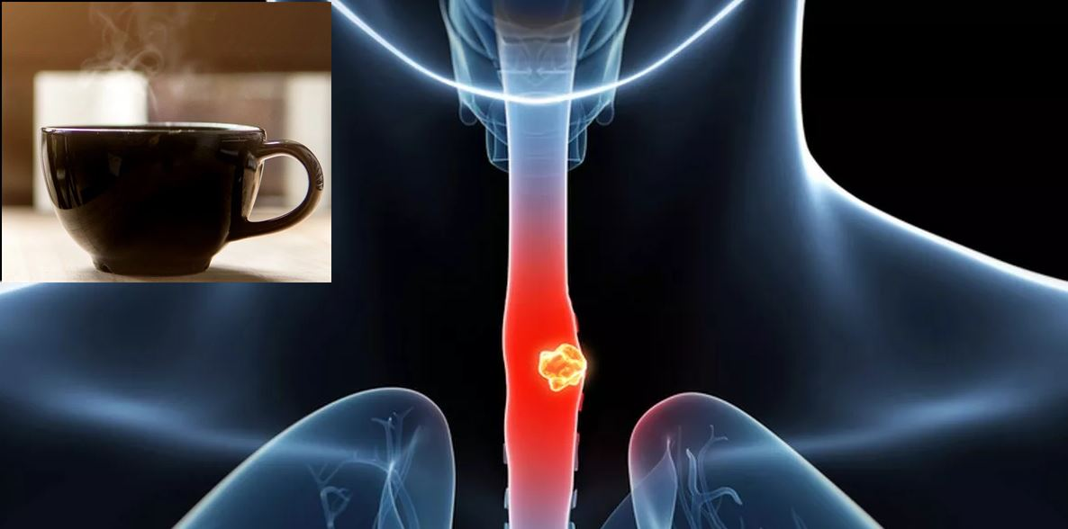 Study Finds a Link Between Drinking Very Hot Beverages and Cancer