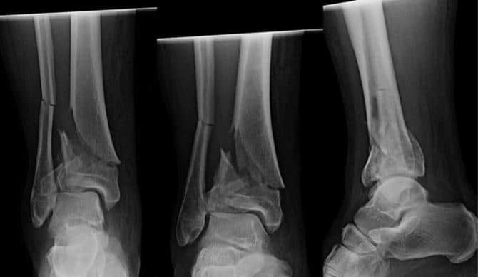 Tibial Or Pilon Fractures